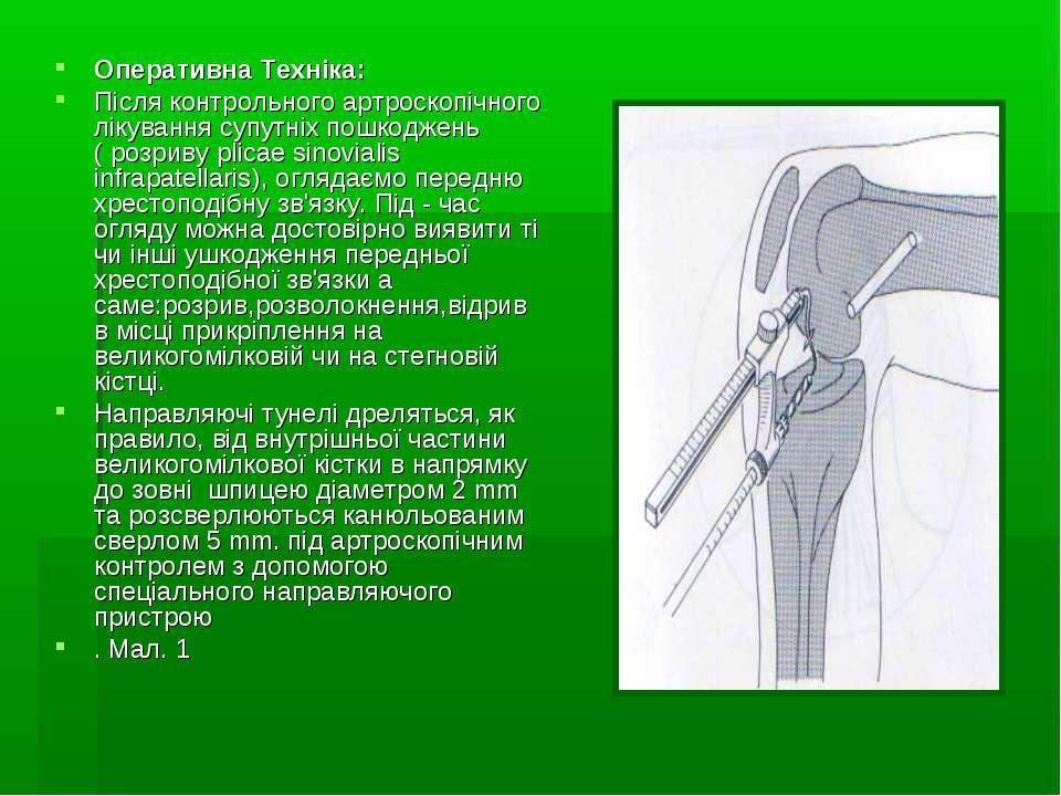 Оперативна Техніка: Після контрольного артроскопічного лікування супутніх пош...