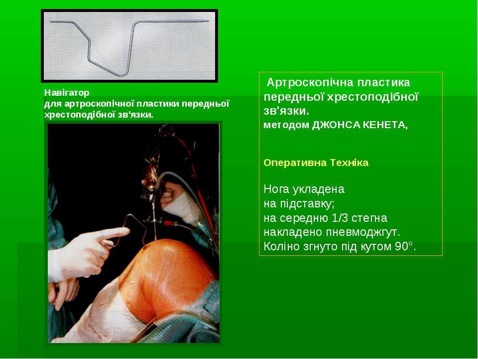 Артроскопічна пластика передньої хрестоподібної зв'язки. методом ДЖОНСА КЕНЕТ...