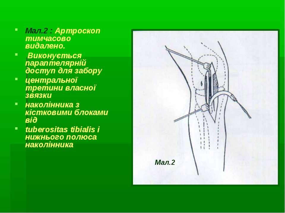 Мал.2 : Артроскоп тимчасово видалено. Виконується параптелярній доступ для за...