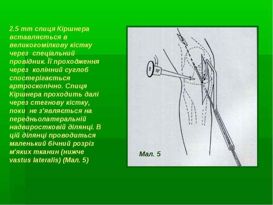 2.5 mm спиця Кіршнера вставляється в великогомілкову кістку через спеціальний...