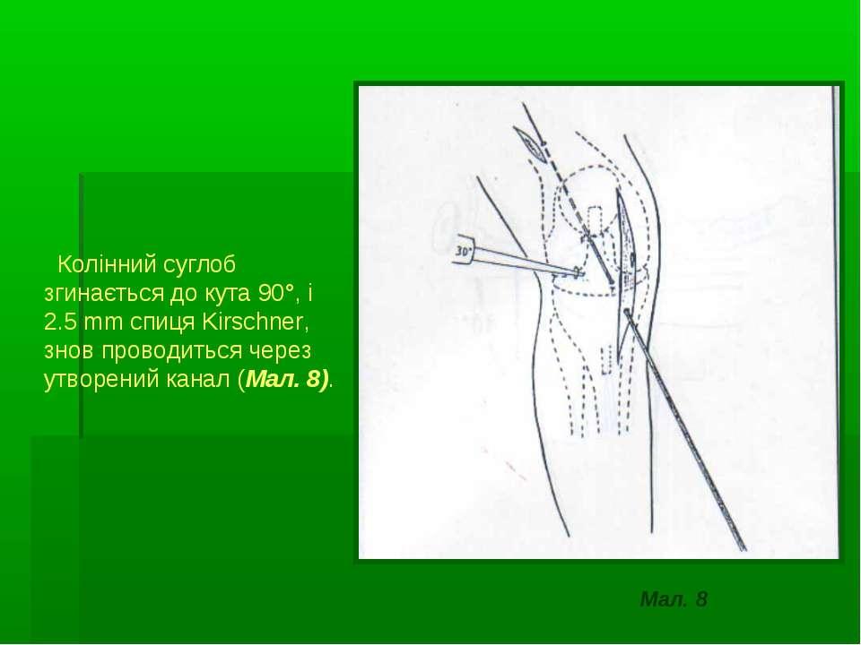 Колінний суглоб згинається до кута 90°, і 2.5 mm спиця Kirschner, знов провод...