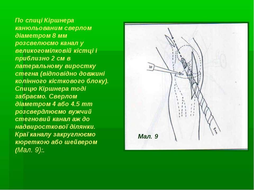 По спиці Кіршнера канюльованим сверлом діаметром 8 мм розсвелюємо канал у вел...