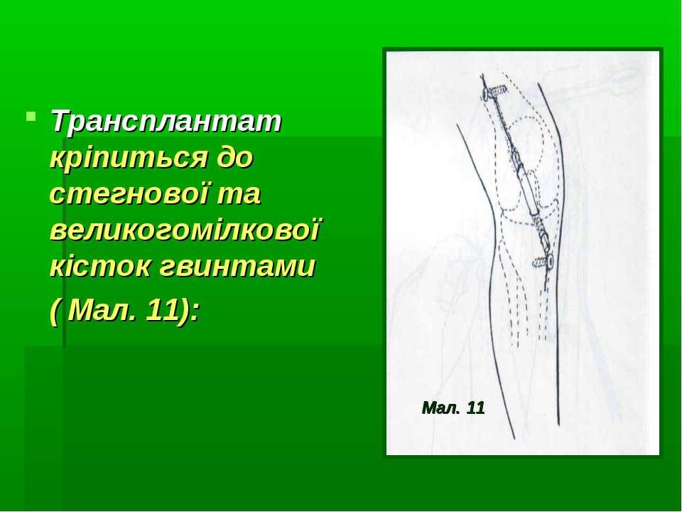 Трансплантат кріпиться до стегнової та великогомілкової кісток гвинтами ( Мал...