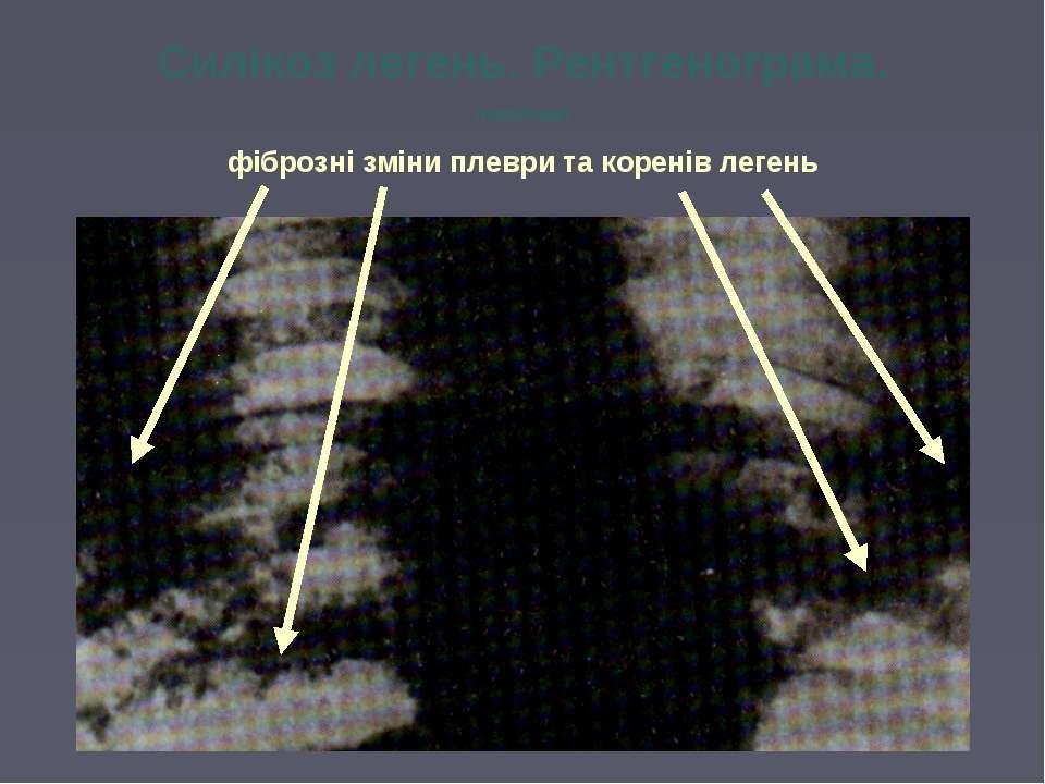 Силікоз легень. Рентгенограма. (позитив) фіброзні зміни плеври та коренів легень