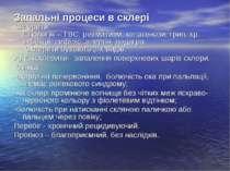 Запальні процеси в склері Склерити. Етіологія – ТВС, ревматизм, колагенози, г...