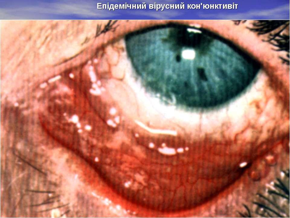 Епідемічний вірусний кон'юнктивіт