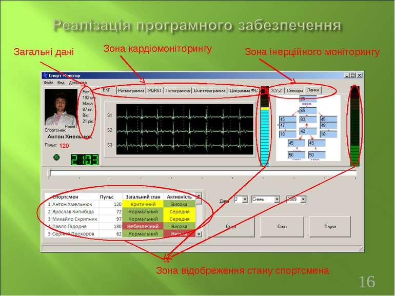 Загальні дані Зона кардіомоніторингу Зона інерційного моніторингу Зона відобр...