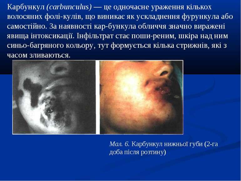 Карбункул (carbunculus) — це одночасне ураження кількох волосяних фолі кулів,...