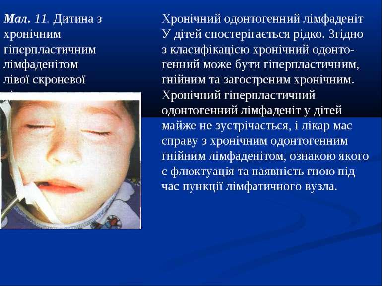 Мал. 11. Дитина з хронічним гіперпластичним лімфаденітом лівої скроневої діля...