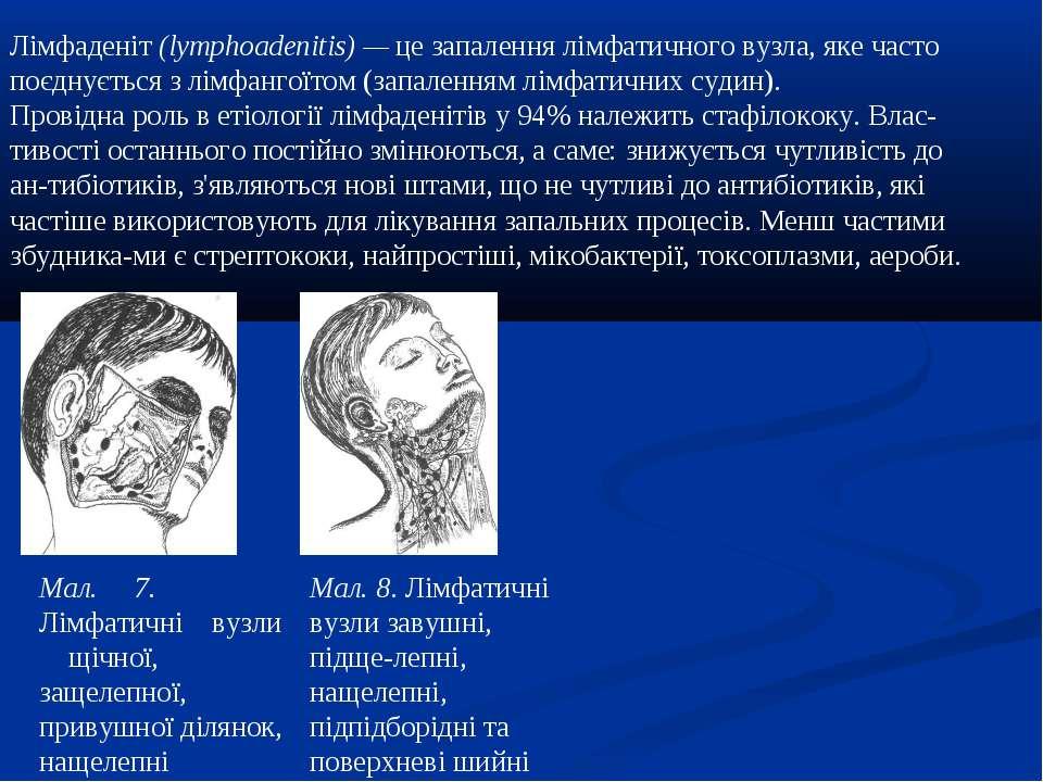 Лімфаденіт (lymphoadenitis) — це запалення лімфатичного вузла, яке часто поєд...