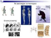 Як виглядає остеопороз Етапи розвитку