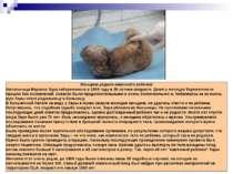 Женщина родила каменного ребенка! Жительница Марокко Зара забеременела в 1959...