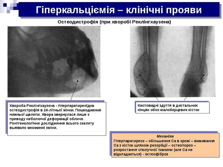 Гіперкальціємія – клінічні прояви Остеодистрофія (при хворобі Реклінгхаузена)...