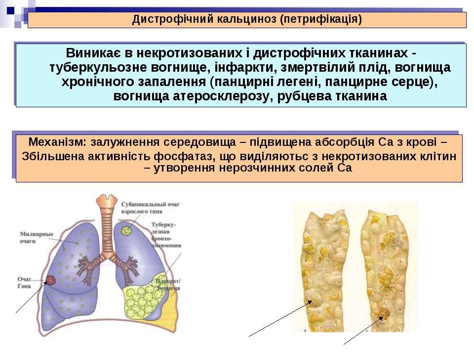 Виникає в некротизованих і дистрофічних тканинах - туберкульозне вогнище, інф...