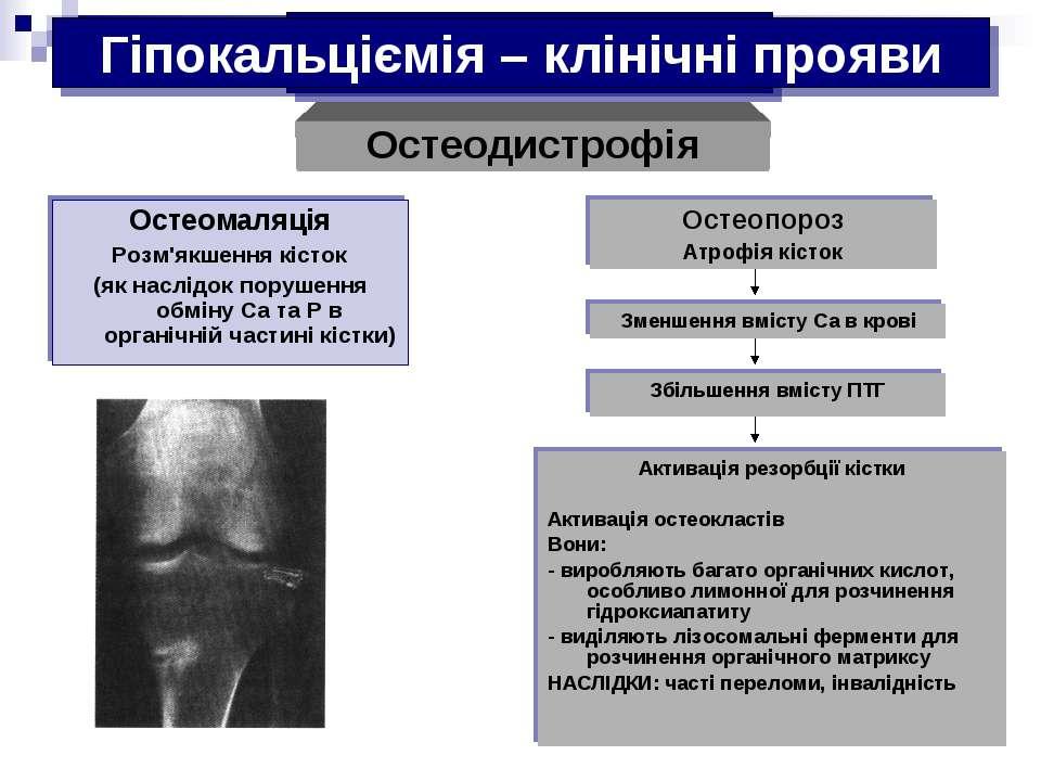 Гіпокальциемія Остеомаляція Розм'якшення кісток (як наслідок порушення обміну...
