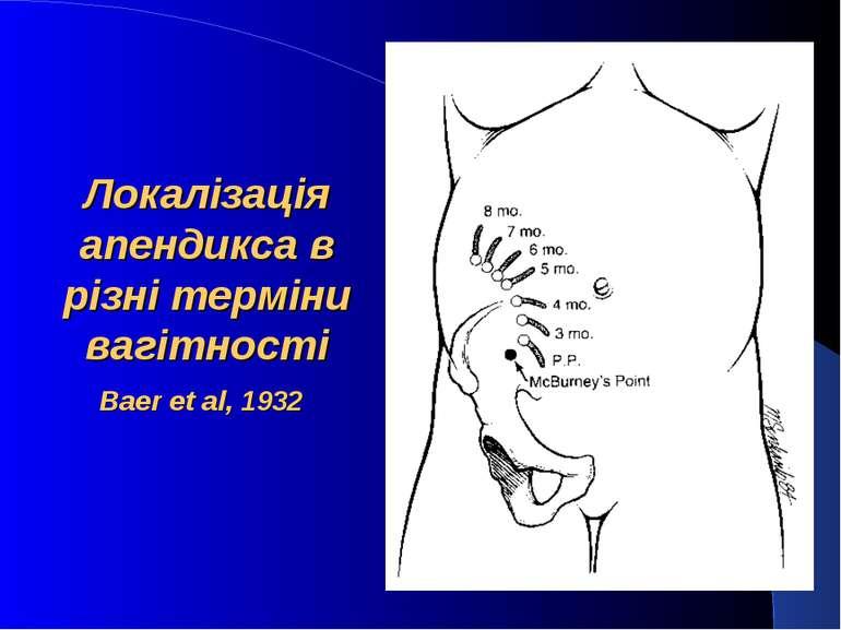Локалізація апендикса в різні терміни вагітності Baer et al, 1932