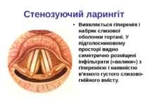 Стенозуючий ларингіт Виявляється гіперемія і набряк слизової оболонки гортані...