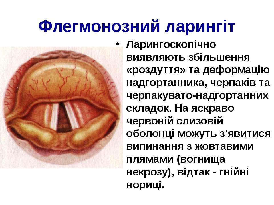 Флегмонозний ларингіт Ларингоскопічно виявляють збільшення «роздуття» та дефо...