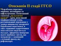Отоскопія IІ стадії ГГСО Барабанна перетика червона, потовщена та інфільтрова...
