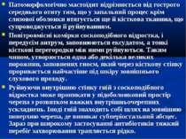 Патоморфологічно мастоїдит відрізняється від гострого середнього отиту тим, щ...