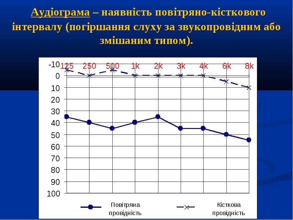 Аудіограма – наявність повітряно-кісткового інтервалу (погіршання слуху за зв...