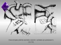 Пальпаторна ревізія жовчних шляхів і ділянки дуоденального сосочка ТДМА