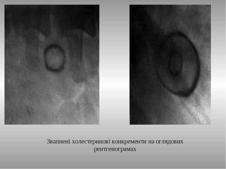 Звапнені холестеринові конкременти на оглядових рентгенограмах ТДМА