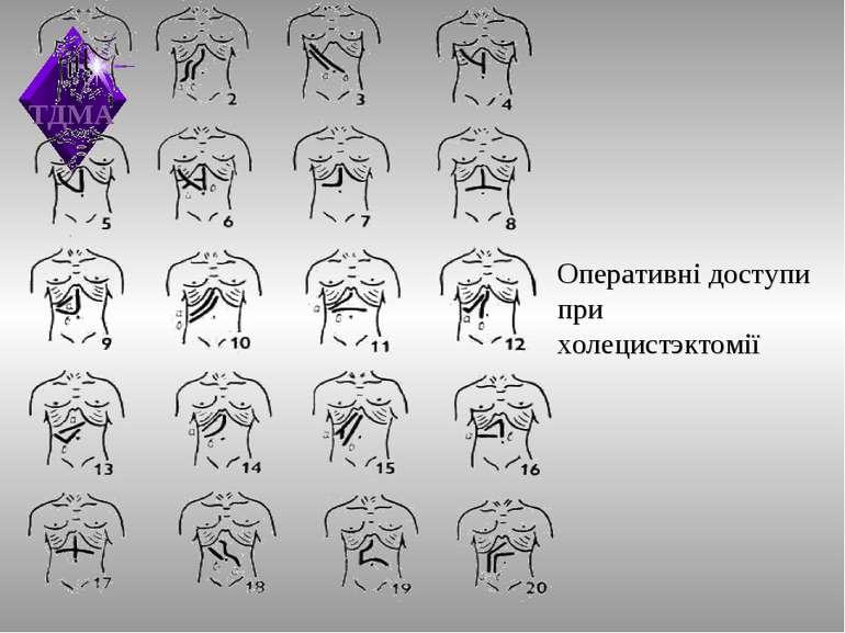 Оперативні доступи при холецистэктомії ТДМА