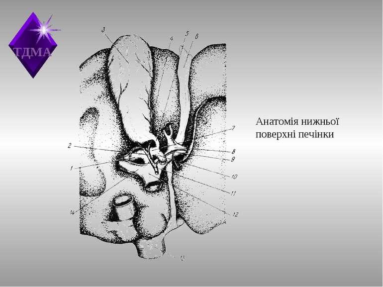 Анатомія нижньої поверхні печінки ТДМА