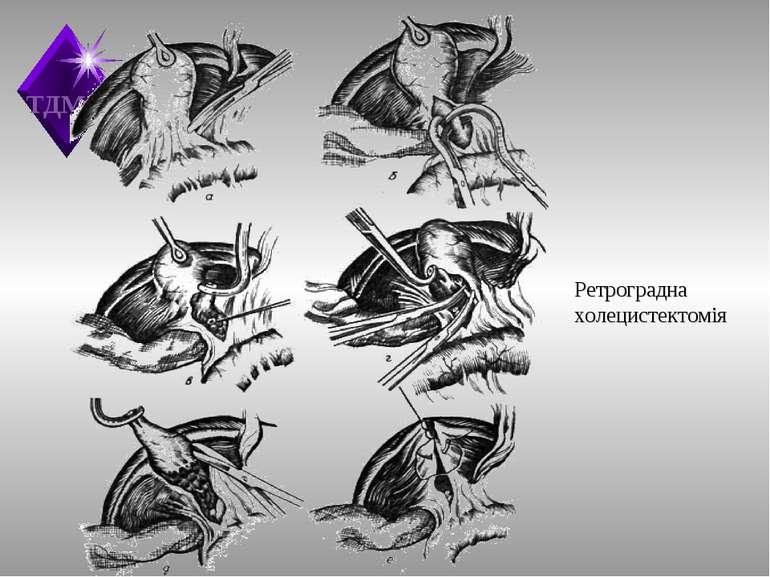 Ретроградна холецистектомія ТДМА