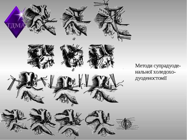 Методи супрадуоде-нальної холедохо-дуоденостомії ТДМА