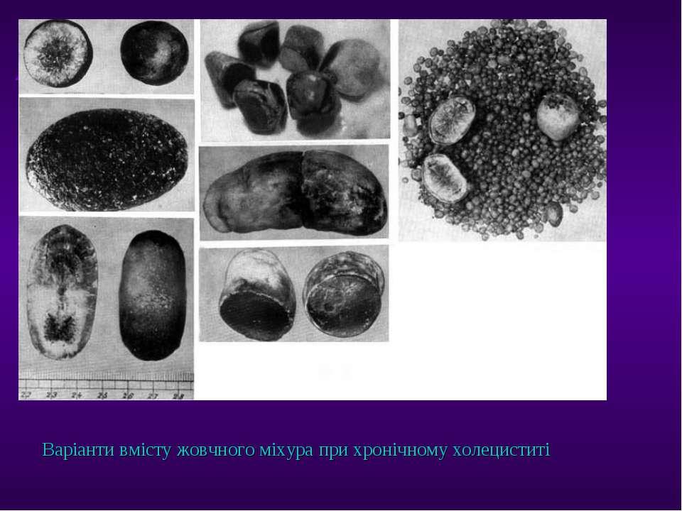 Варіанти вмісту жовчного міхура при хронічному холециститі ТДМА