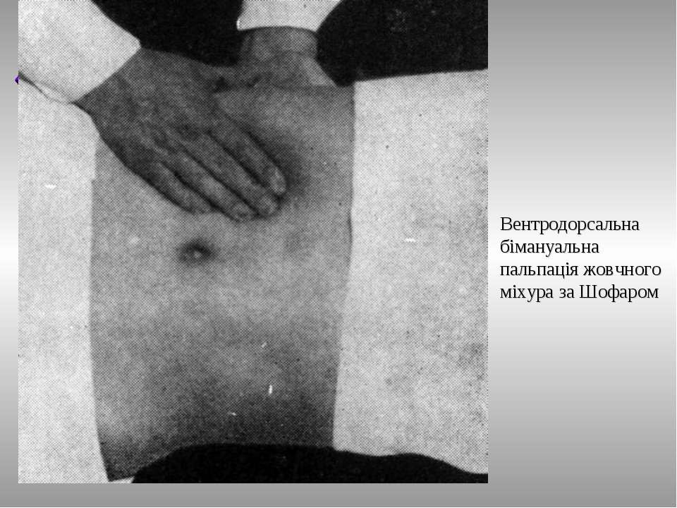 Вентродорсальна бімануальна пальпація жовчного міхура за Шофаром ТДМА