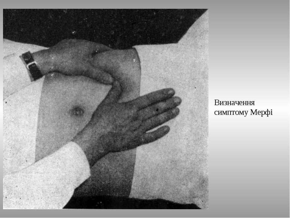 Визначення симптому Мерфі ТДМА