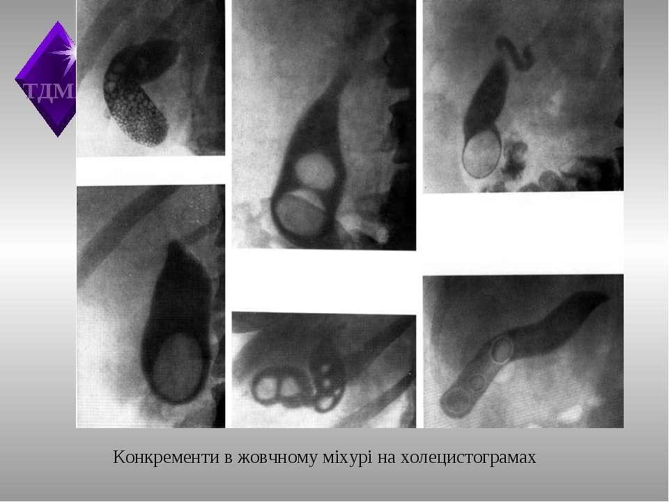 Конкременти в жовчному міхурі на холецистограмах ТДМА