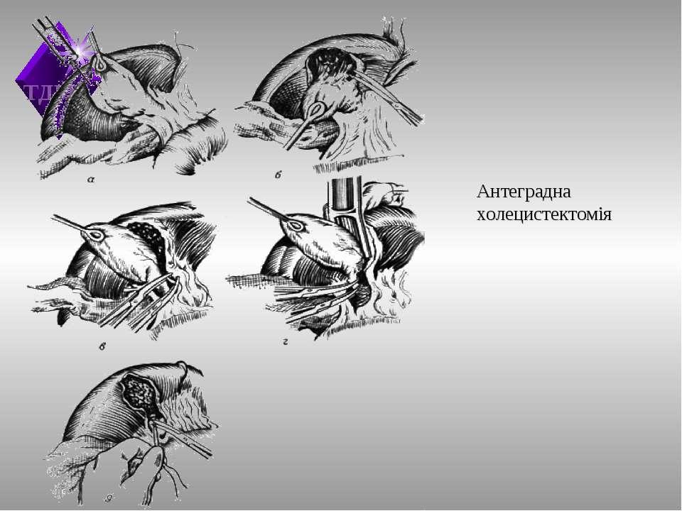 Антеградна холецистектомія ТДМА