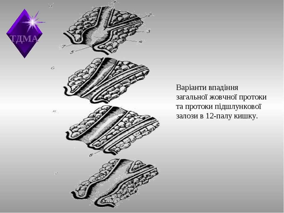 Варіанти впадіння загальної жовчної протоки та протоки підшлункової залози в ...
