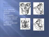 А –Б – можливі зміщення під час операції В – утворення кісткового ложа для n....