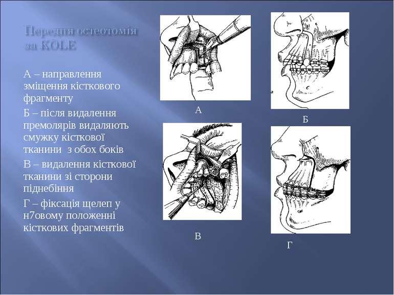 А – направлення зміщення кісткового фрагменту Б – після видалення премолярів ...
