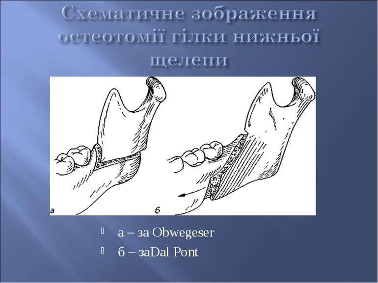 а – за Obwegeser б – заDal Pont