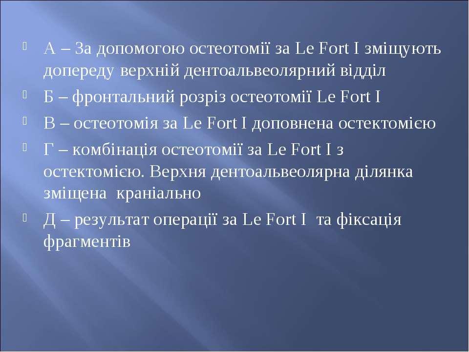 А – За допомогою остеотомії за Le Fort I зміщують допереду верхній дентоальве...