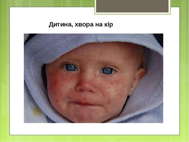 Дитина, хвора на кір