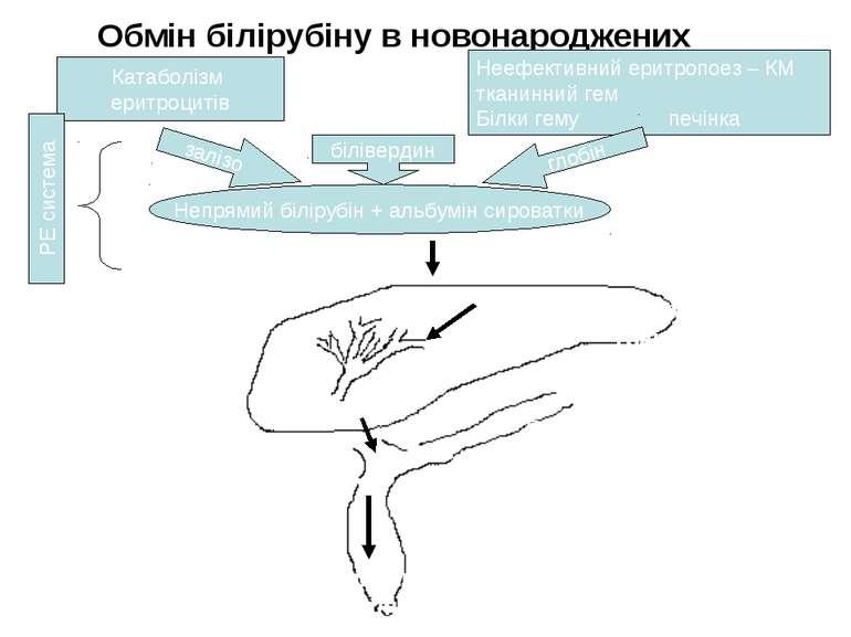 Обмін білірубіну в новонароджених Катаболізм еритроцитів Неефективний еритроп...