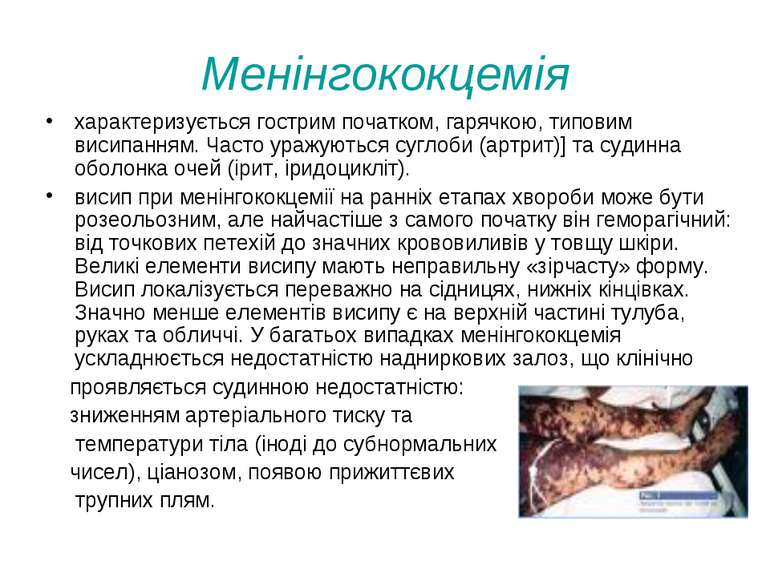 Менінгококцемія характеризується гострим початком, гарячкою, типовим висипанн...