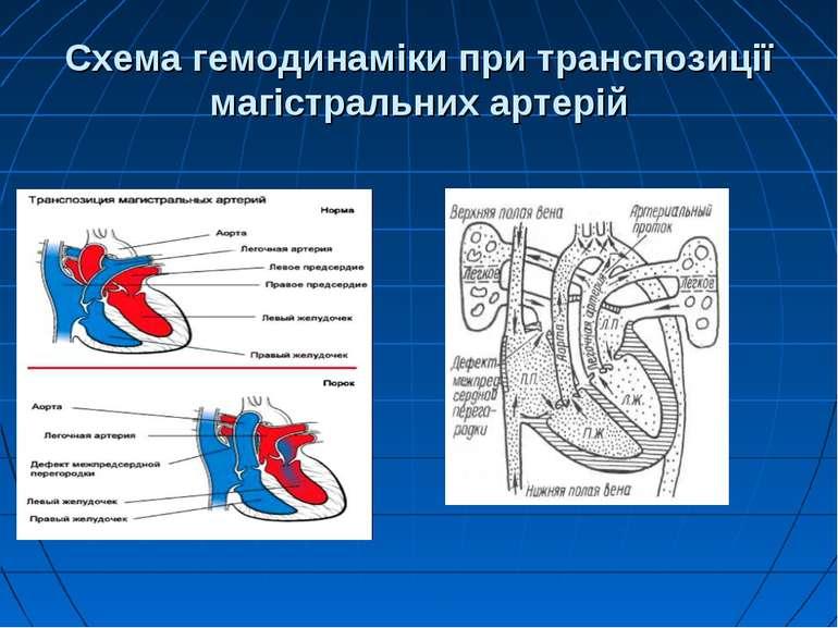 Схема гемодинаміки при транспозиції магістральних артерій