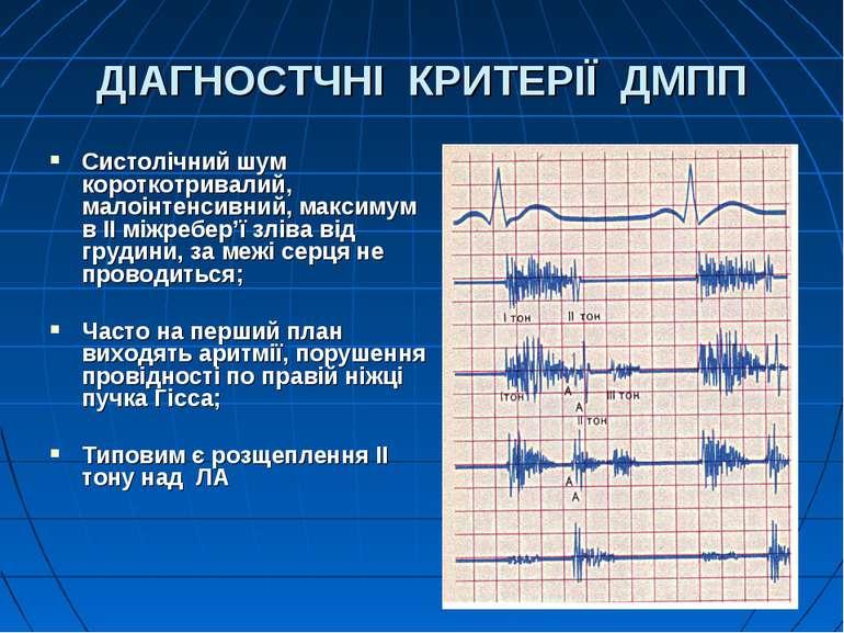 ДІАГНОСТЧНІ КРИТЕРІЇ ДМПП Систолічний шум короткотривалий, малоінтенсивний, м...