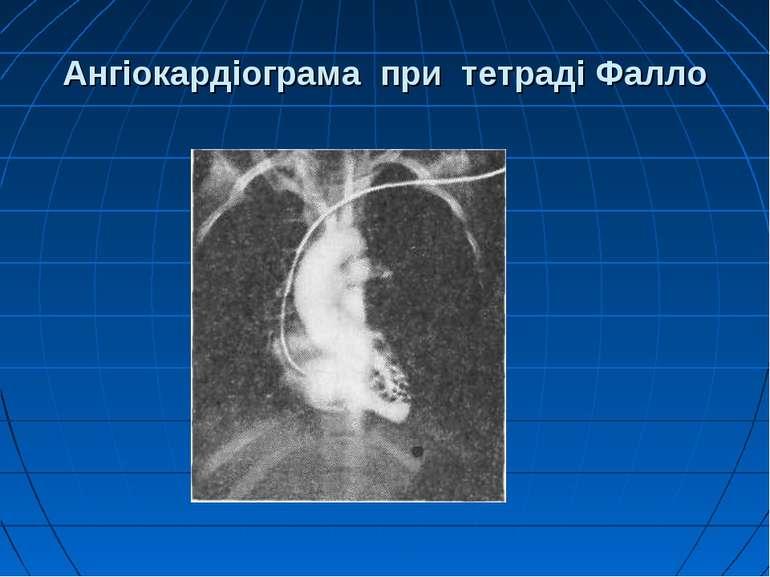Ангіокардіограма при тетраді Фалло