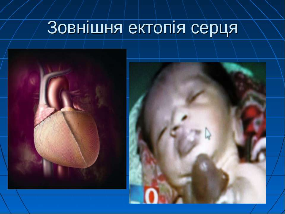 Зовнішня ектопія серця