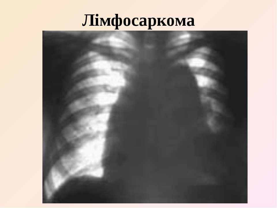 Лімфосаркома
