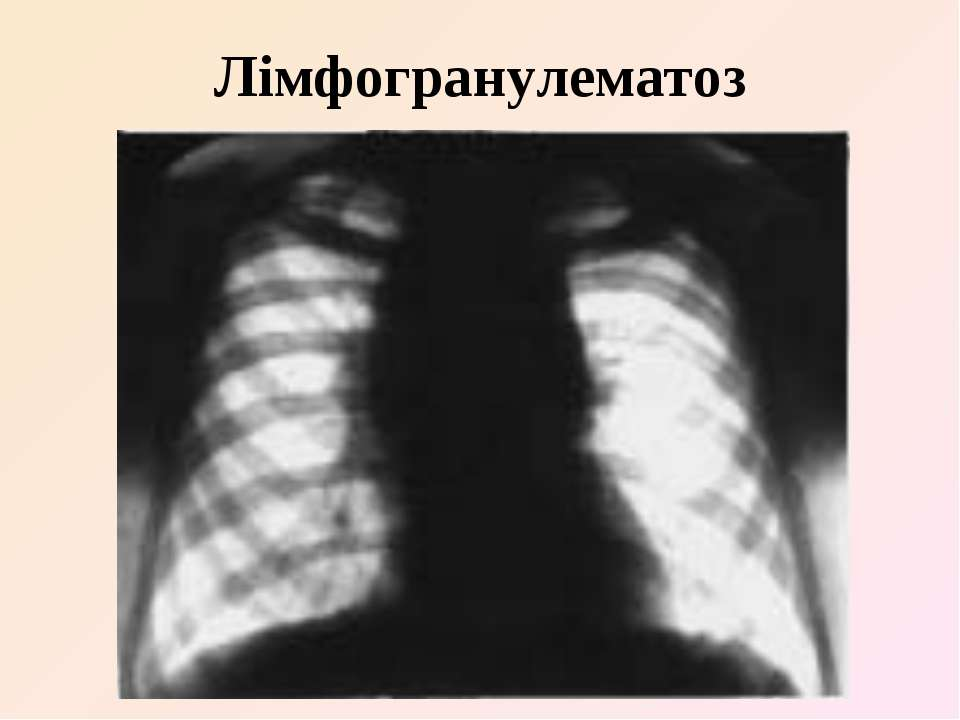 Лімфогранулематоз